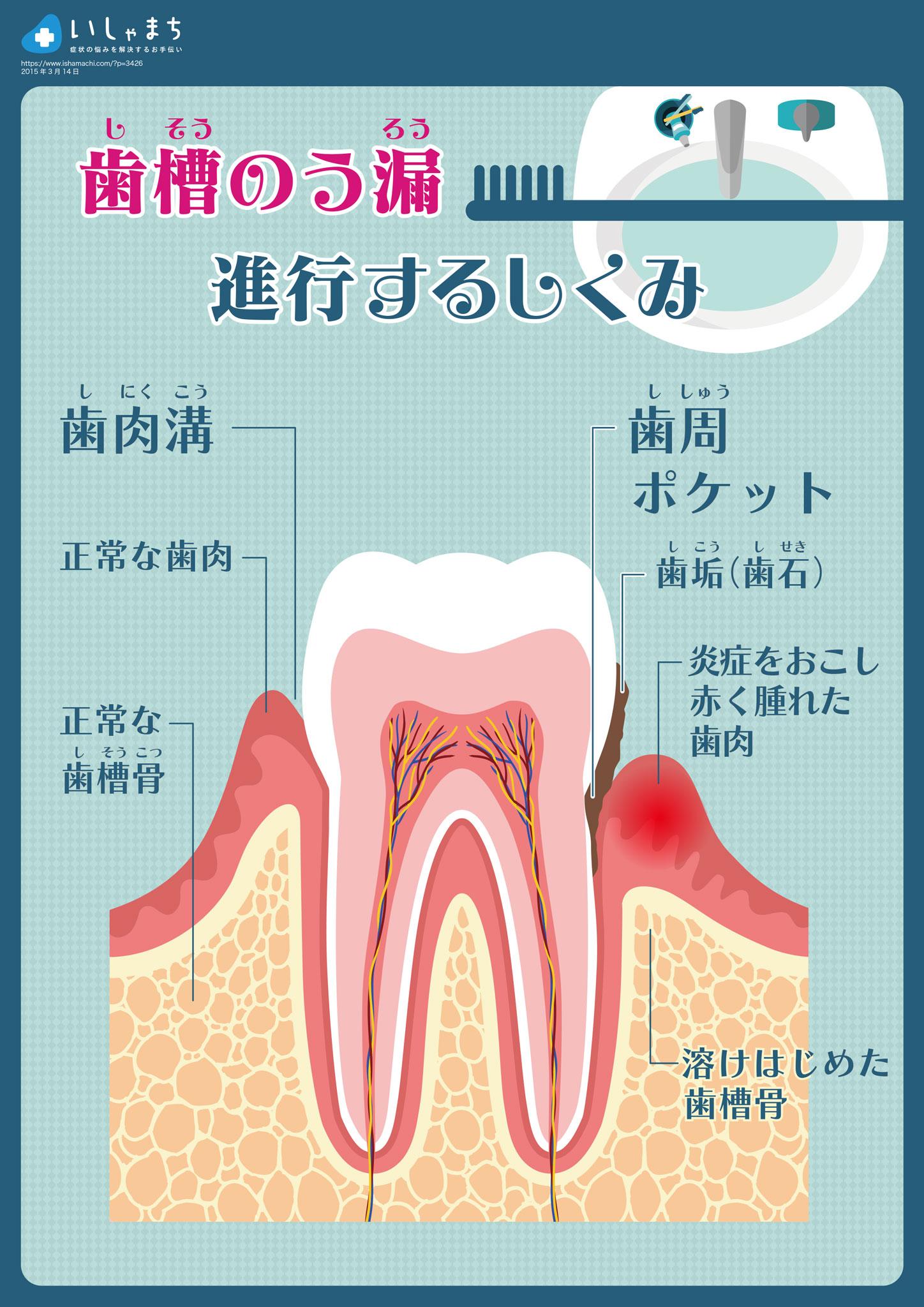 歯槽のう漏のしくみ