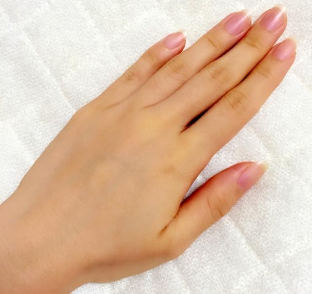 手指の病気22選!奇病からよくある病気まで!   指 …