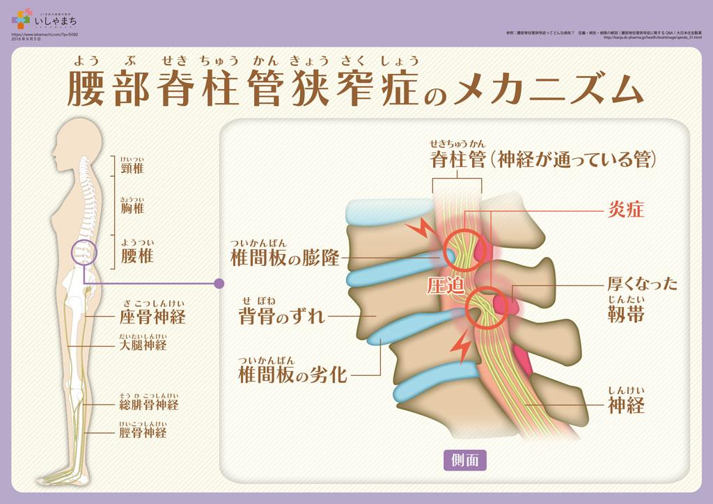 腰部脊柱管狭窄症のメカニズム