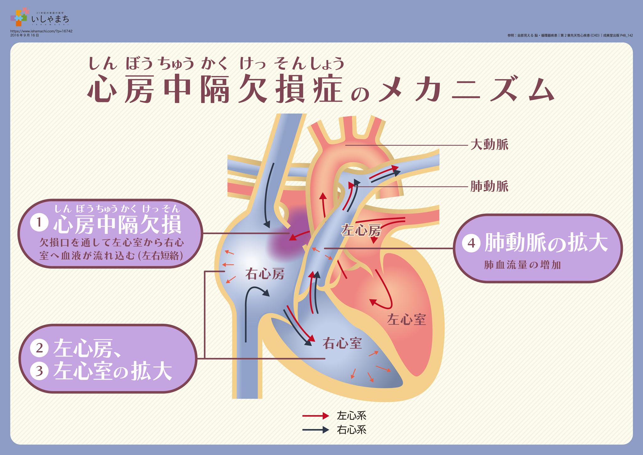 心房中隔欠損症のメカニズム – ...