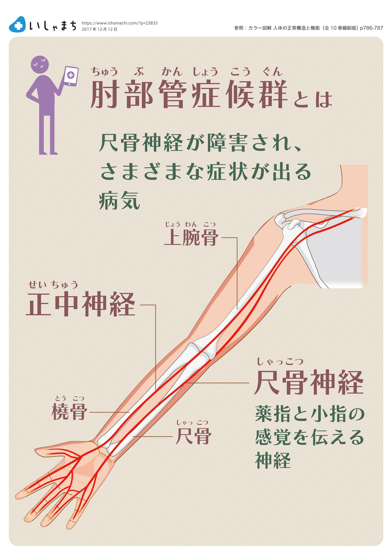 肘 部 管 症候群