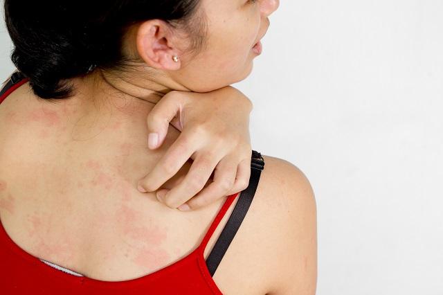 発熱後の発疹