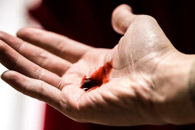 マロリー・ワイス症候群で吐血