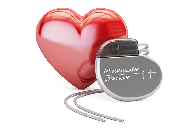 ペースメーカーと心臓