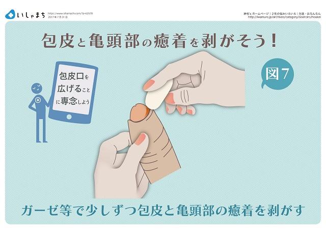 剥がし 包皮 方 癒着 包皮の癒着の剥がし方&簡単な確認方法